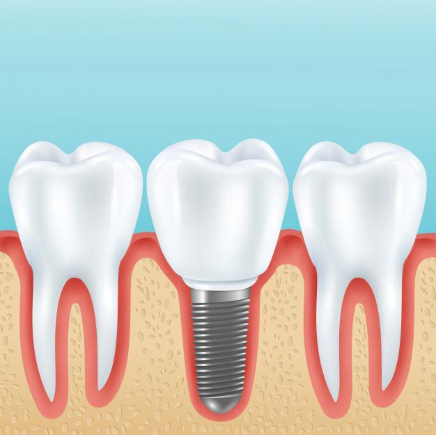 Zobni vsadki 2